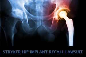Stryker Hip Implant Recall Alert, Lawsuits Now being Investigated by Wright & Schulte LLC | yourlegalhelp.com