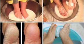 Υγεία - Πολύς κόσμος φροντίζει το σώμα του αλλά παραμελεί τα πόδια. Ωστόσο, τα ξηρά πόδια είναι πολύ απωθητικά και δυσάρεστα και συχνά προκαλούν πόνο. Γι'αυτό, είν