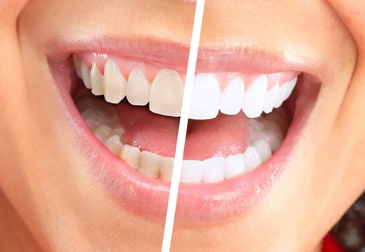Come avere denti bianchi in modo naturale