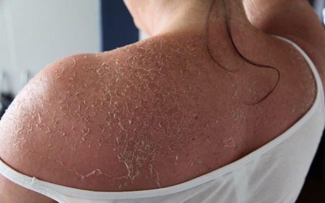 how to stop sunburn skin from peeling