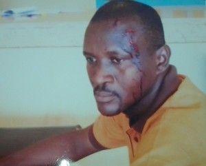 Council Officials, Thugs Attack Ekweremadu's Medical Mission in Enugu