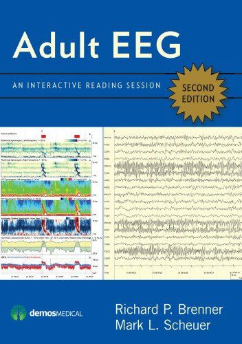 Adult EEG, Second Edition DVD: An Interactive Reading Session by Richard Brenner MD http://www.amazon.com/dp/1620700220/ref=cm_sw_r_pi_dp_Rqftvb0F4HCVV