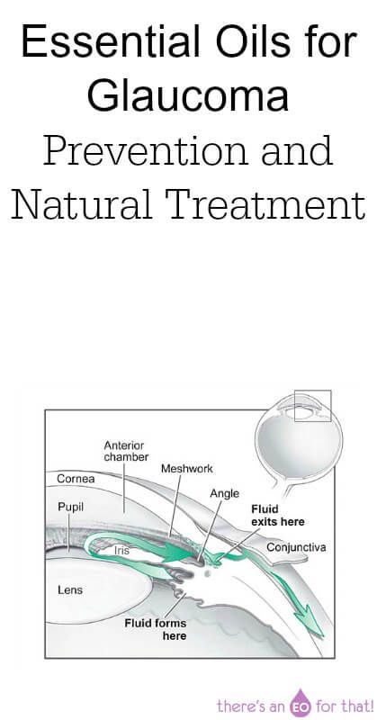 How to use essential oils for preventing and treating glaucoma naturally.
