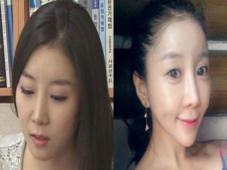 Disfigured Victim of Korean Plastic Surgery – Disfigured ...