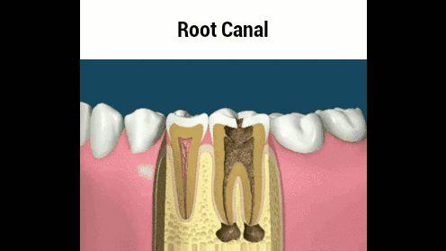 #gifs #santé #couronne #dent #dentiste #dévitalisation #racine #soin