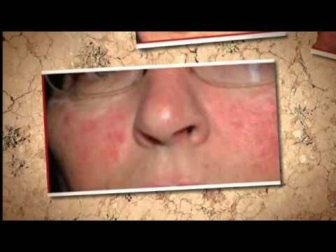 Visit our site http://www.rashonfaceblog.net for more information on Rash On Face.The use of homely Rash On Face treatment becomes necessary if you have rashes on your face and other parts of body due to various reasons including lack of skin maintenance, excessive sweating, dryness on skin or sensitivity of the skin.