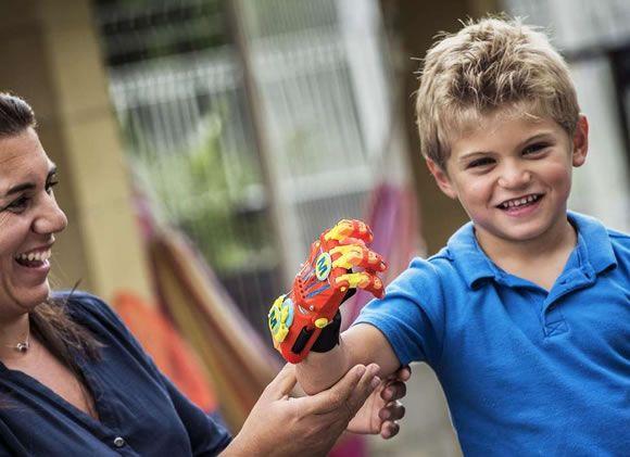 Niño francés recibe mano impresa en 3D @alvarodabril
