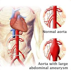 Symptoms of Abdominal Aortic Aneurysm