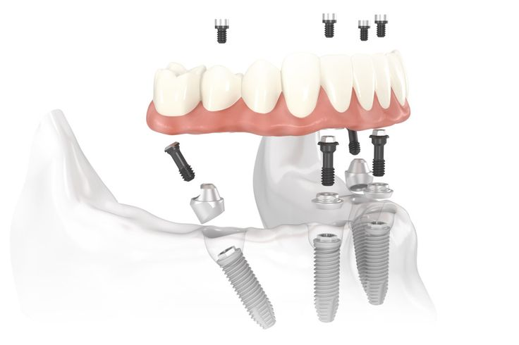 Get in touch with us for dental implants and oral surgery by the best Prosthodontist in Scottsdale, AZ. We offer quality services at the most reasonable rates.