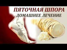 ПЯТОЧНАЯ ШПОРА. Лечение Пяточной Шпоры Народными средствами в Домашних Условиях - YouTube