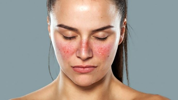 How to Treat Lupus Rash? Signs, Symptoms and Treatments | SayHealthy