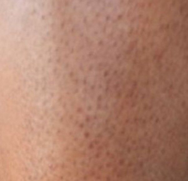 how to get rid of hair pores on legs