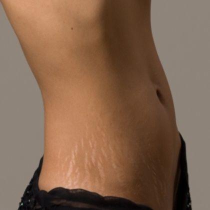 stretch-marks on thigh