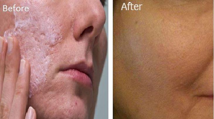 Te contamos un tip de belleza súper eficaz: descubre cómo eliminar poros abiertos del rostro y de todo el cuerpo, utilizando sólo bicarbonato de sodio.