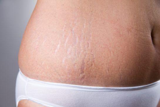 7 astuces pour prévenir l'arrivée des vergetures lors d'une grossesse noté 5 - 2 votes Les vergetures sont très communes après une grossesse. La peau s'étire moins rapidement que votre corps et votre utérus qui se préparent à l'arrivée de bébé qui est en pleine croissance dans votre ventre. Le derme se brise à cause...