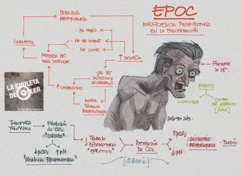 La Chuleta de Osler: Neumología: EPOC - Fisiopatología de la hipoxemia en la exacerbación