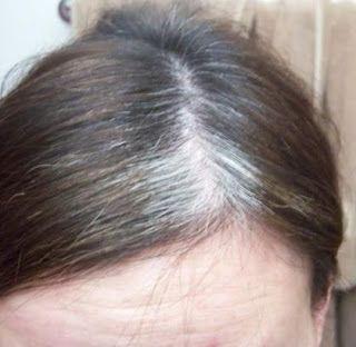 Best Hair Treatments For Natural Hair