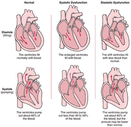 17 Best ideas about Heart Disease Symptoms on Pinterest | Heart ...
