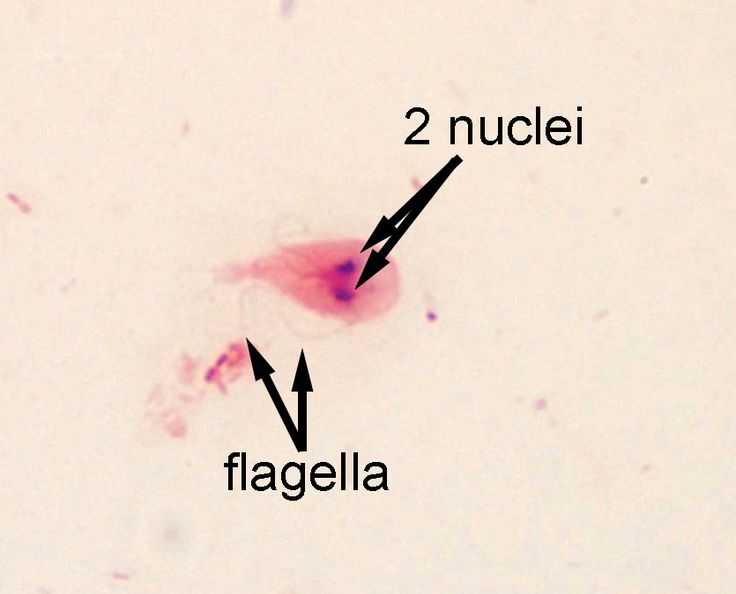 Giardia duodenalis, aka G. lamblia, G. intestinalis This uncommon preparation of a common parasite nicely demonstrates how the mor...