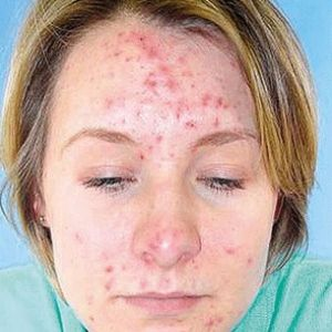 Natural Cures For Pimples And Acne