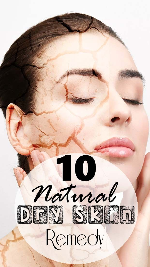 ★★★★★ 10 Natural Dry Skin Remedy – SOOTHE DRY AND FLAKING SKIN NATURALLY