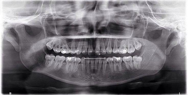#Ortodoncia