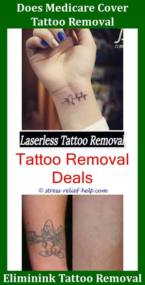 The Best Tattoo Removal Tattoo Removal Columbus Ohio How To