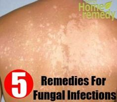 Top 5 Herbal Remedies For Fungal Infections