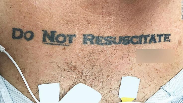 """An unconscious 70-year-old man was admitted to a hospital sporting a """"Do Not Resuscitate"""" tattoo, prompting a medical and ethical debate among the staff."""