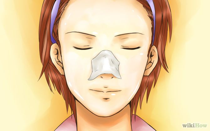 Mitesser entfernen / How to get rid of blackheads
