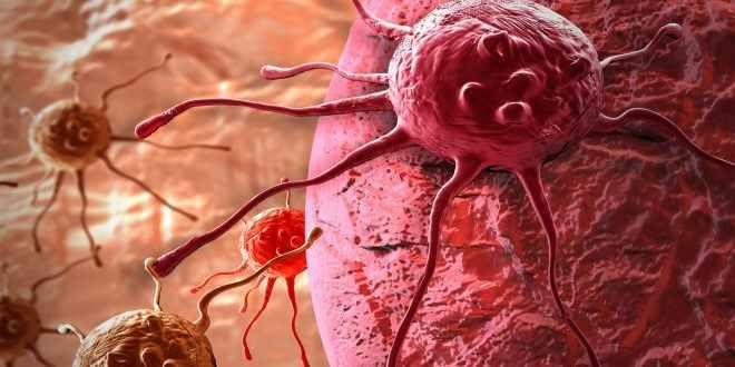 Il cancro: come quando e perchè? Che cosa ha causato il cancro? è la domanda che assilla pazienti medici scienziati. I geni muta