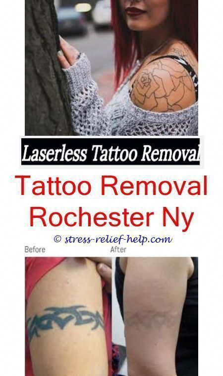 Best Tattoo Removal What Is The Best Laser For Tattoo Removal Big