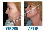 If you are bothered by signs of aging in your face, facelift surgery may be right for you.