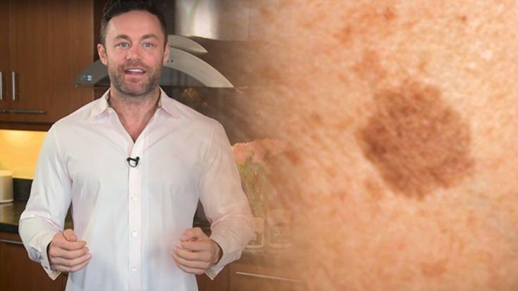 A híres bőrgyógyász elmondta a titkot: szabadulj meg a barna foltoktól és öregségi ráncoktól ezzel a filléres trükkel! – - MindenegybenBlog