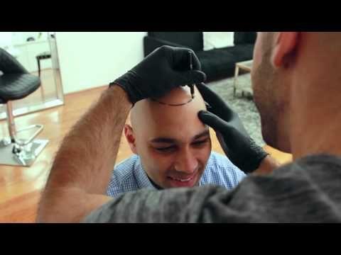 Inside Look: Scalp Micropigmentation Treatment - Scalp Micro USA - YouTube
