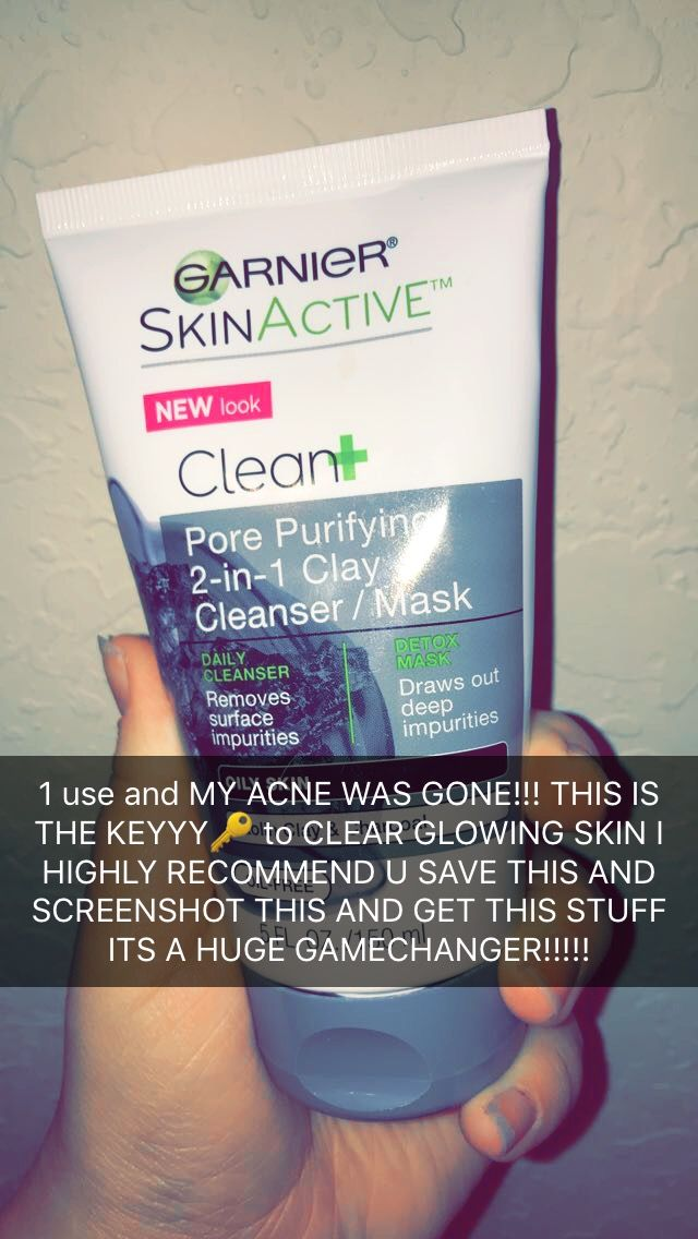 THANK ME LATER!!!✨✨✨ ACTUALLY CRYING OVER HOW GREAT MY SKIN LOOKS AFTER USING THIS ITS ONLY 9 DOLLARS!!!!! http://beautifulclearskin.net/category/clear-skin-tips/