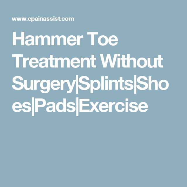 Hammer Toe Treatment Without Surgery|Splints|Shoes|Pads|Exercise