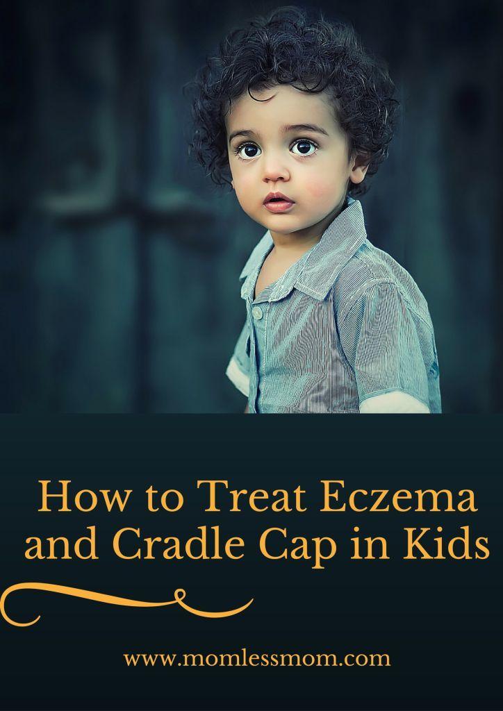 How to Treat Eczema and cradle cap in kids #treateczema #cradlecap