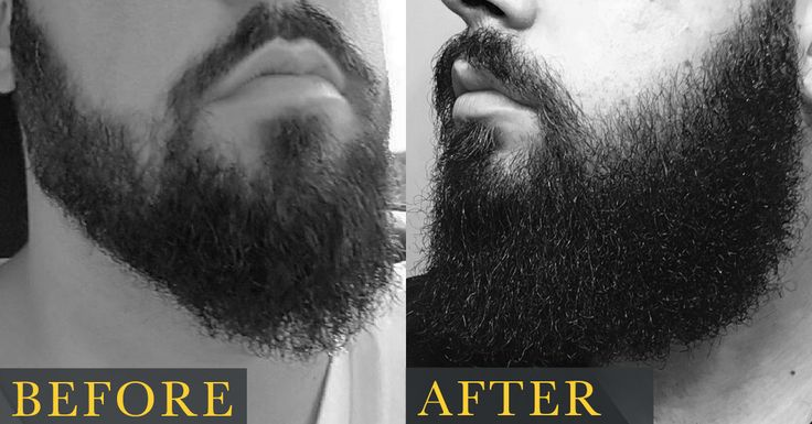 How To Grow A Beard The Right Way