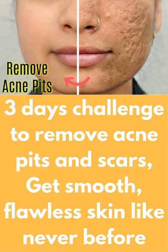 How to remove acne scars from face by home remedies
