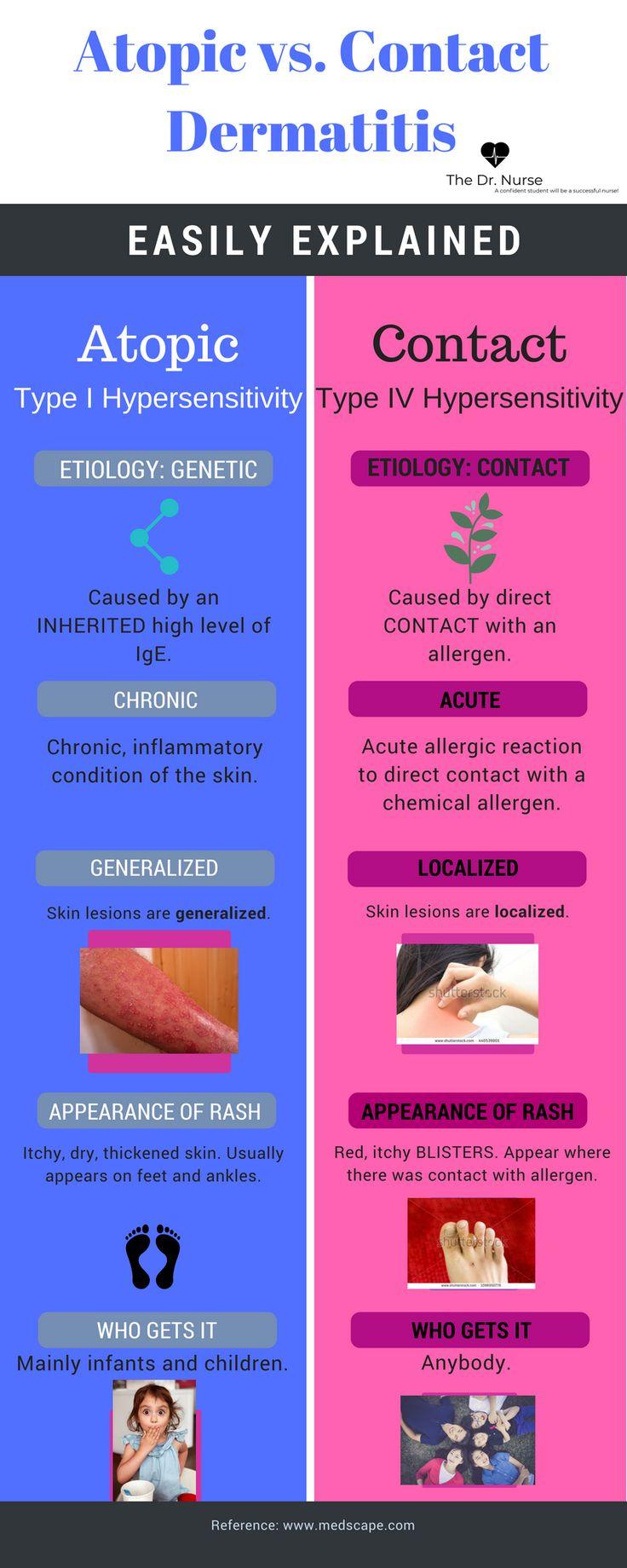 Atopic Dermatitis vs. Contact Dermatitis.png Dermatology