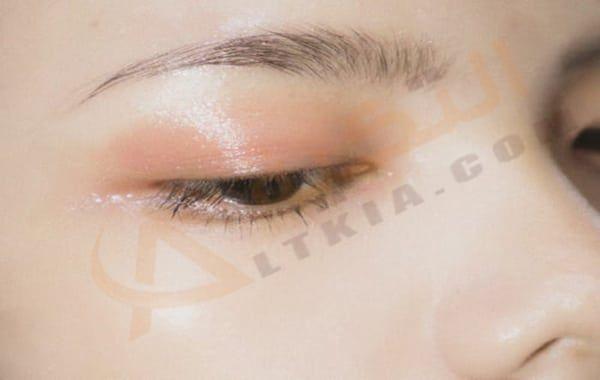 التهاب جفن العين من أكثر الفيروسات التي ت صيب العين انتشارا حيث أنها تصبح في هذه الحالة في شكلها الغير طبيعي فإن جفن العين هو عبارة عن طبقة من الجلد ت غطي الع