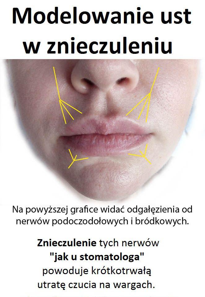 Modelowanie ust kwasem hialuronowym bywa bolesne, dlatego powinno być wykonywane w znieczuleniu.  http://www.ame-lekarze.pl  Najczęściej stosowany jest krem znieczulający, który dobrze znosi ból podczas nakłucia igłą ust, ponieważ działa powierzchownie. Następnie przez tą igłę wstrzykiwany jest kwas hialuronowy. Tutaj krem znieczulający nie działa już tak dobrze.  Czy mieli Państwo kiedykolwiek znieczulenie u stomatologa? Czytaj więcej na: http://www.ame-lekarze.pl/aktualnosci