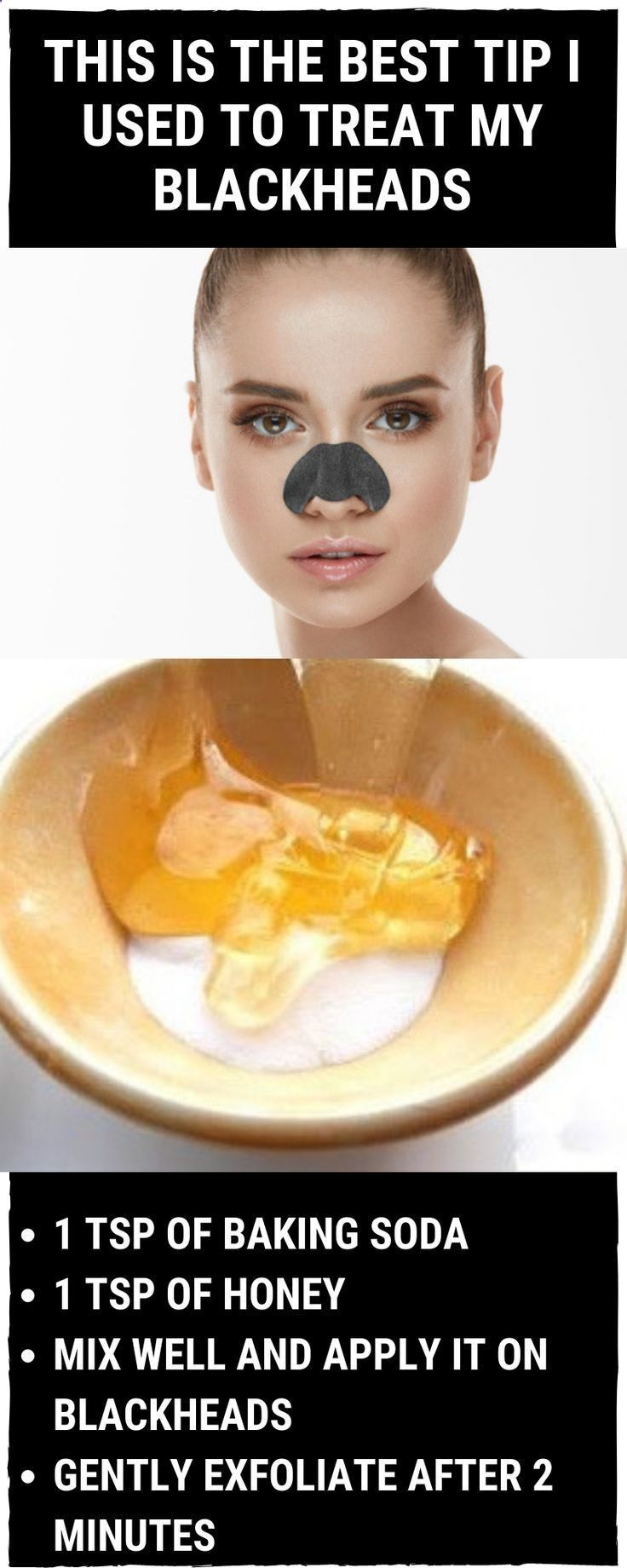 How to use Honey to get Rid of Blackheads – #blackheads #Honey #Rid