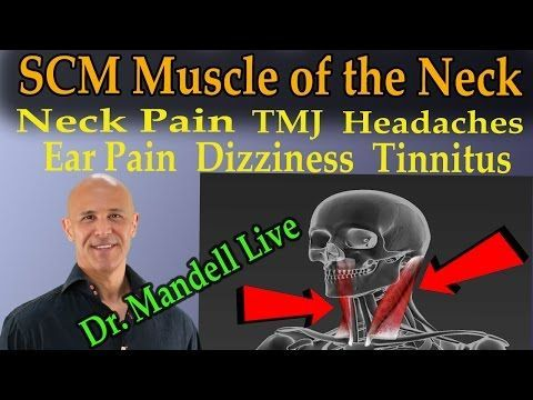 The SCM Muscle of the Neck -  The Common Cause of Neck Pain, TMJ, Headaches, Dizziness, Tinnitis - YouTube