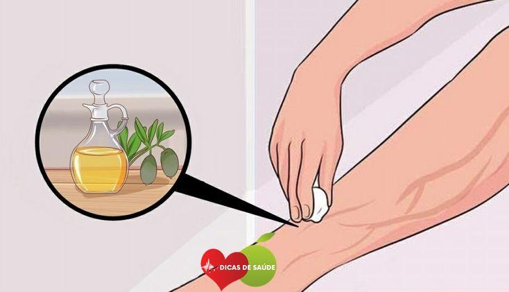 Acabe com as Varizes com Apenas 1 Ingrediente | Dicas de Saúde