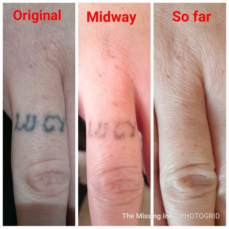 Finger tattoo laser tattoo removal laser tattoo tattoo