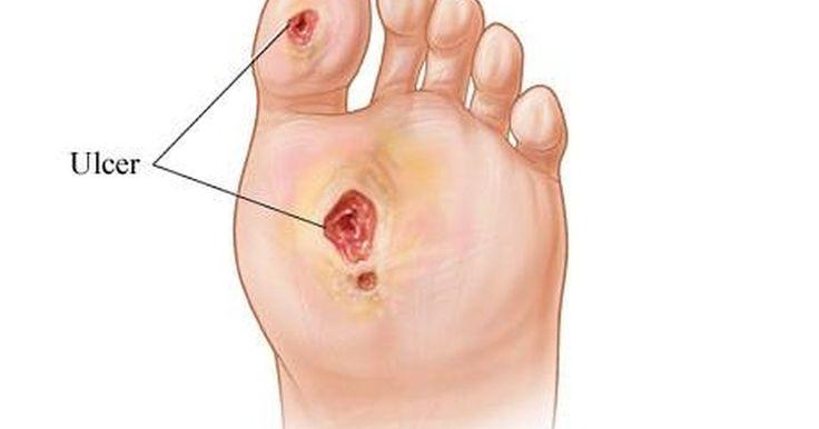 Com o que uma úlcera no pé se parece?. Uma úlcera nos pés é uma ferida aberta na região do pé, calcanhar ou até mesmo entre os dedos. Ela nem sempre é uma condição dolorosa — às vezes, a pessoa só sente uma queimação, coceira ou sensação apertada no local do ferimento. No entanto, sem tratamento, a úlcera pode levar a abscessos e gangrena. Algumas levam até à amputação.