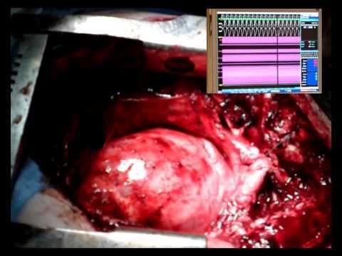 Ventricular Tachycardia - YouTube