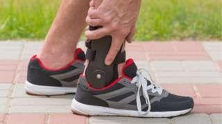 Image copyright                  Thinkstock                  Image caption                                      Las lesiones en el tobillo son muy comunes en especial en deportistas de alta competencia.                                ¿Es posible poder volver a estar en la misma forma física después de una fractura o una lesión en alguna parte de las piernas?